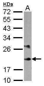 MYL6B Antibody (PA5-30976) in Western Blot