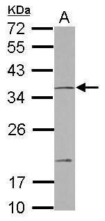NOTCH2NL Antibody (PA5-30986)