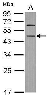 WDR4 Antibody (PA5-30991) in Western Blot