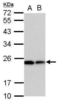 DHFR Antibody (PA5-30992) in Western Blot