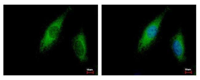 ABCE1 Antibody (PA5-30993) in Immunofluorescence