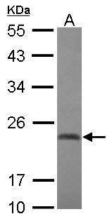 CBX2 Antibody (PA5-30996) in Western Blot