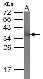 TRIM62 Antibody (PA5-30999) in Western Blot