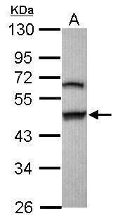 GSDMB Antibody (PA5-31010) in Western Blot