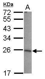 LIN7B Antibody (PA5-31018) in Western Blot