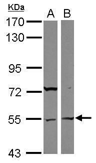 ASB3 Antibody (PA5-31022)