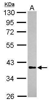 RFFL Antibody (PA5-31032) in Western Blot
