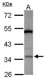 LRG1 Antibody (PA5-31046) in Western Blot