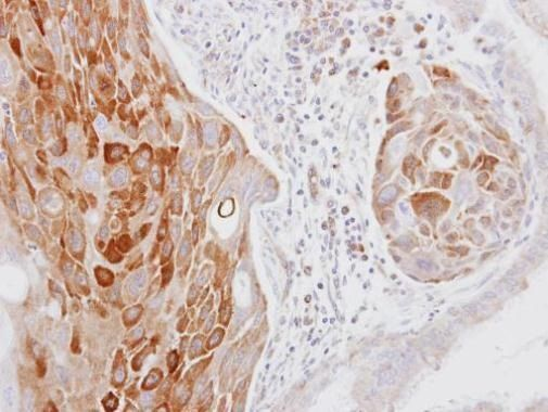COL14A1 Antibody (PA5-31047) in Immunohistochemistry (Paraffin)