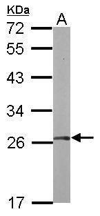 FGFR1OP2 Antibody (PA5-31050) in Western Blot