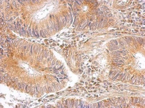 RPL8 Antibody (PA5-31054) in Immunohistochemistry (Paraffin)