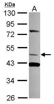 TRIM15 Antibody (PA5-31058) in Western Blot