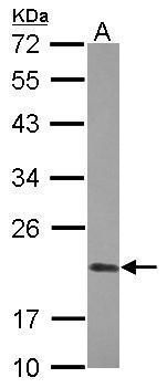 Cyclophilin D Antibody (PA5-31061) in Western Blot