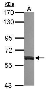 VAM1 Antibody (PA5-31065) in Western Blot