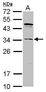 ASB8 Antibody (PA5-31068) in Western Blot