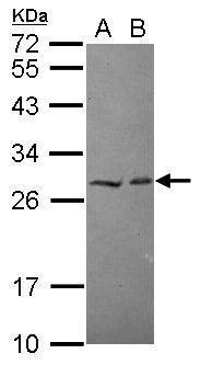 HECTD2 Antibody (PA5-31069) in Western Blot