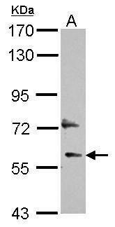 DEPDC7 Antibody (PA5-31070) in Western Blot