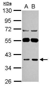 LANCL1 Antibody (PA5-31081) in Western Blot