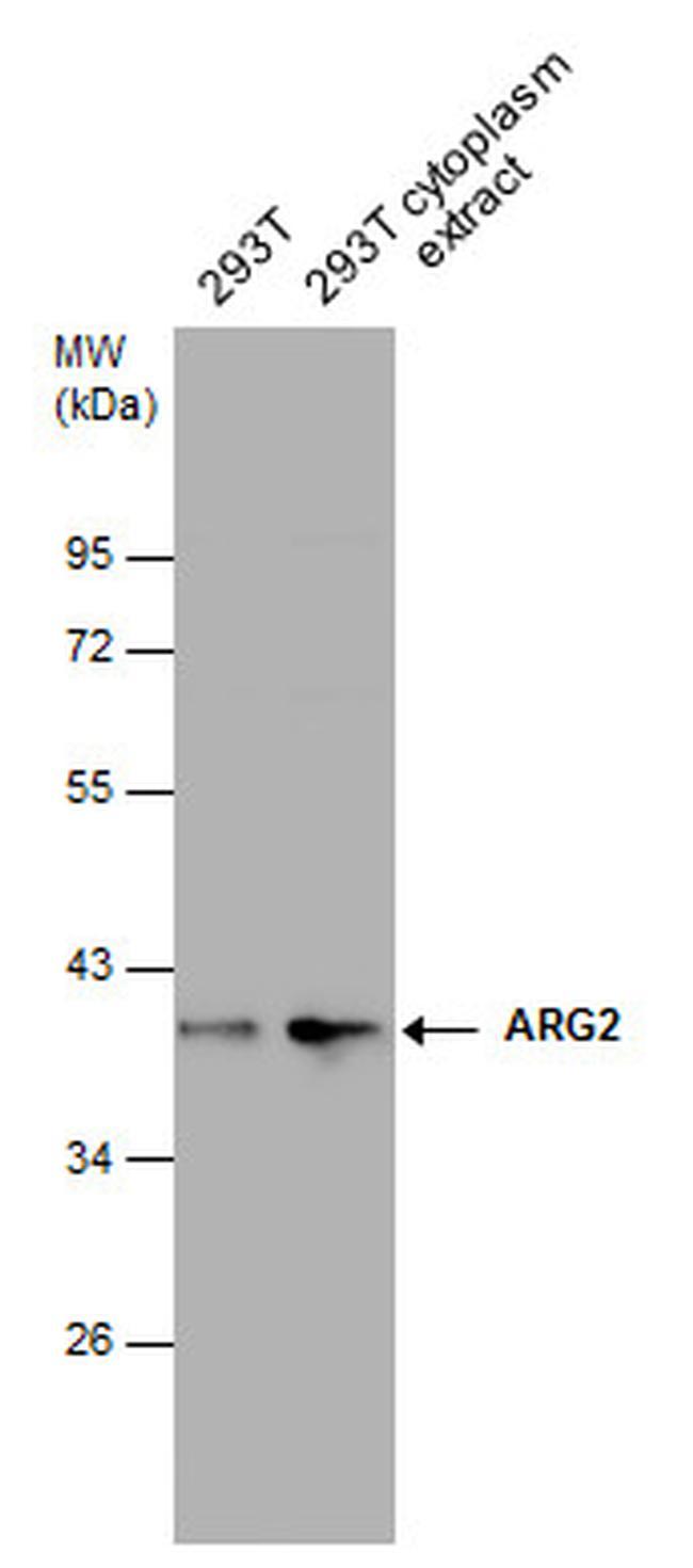 Arginase 2 Antibody (PA5-31088) in Western Blot