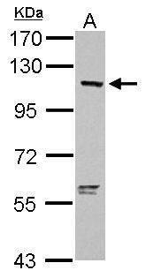 OAS3 Antibody (PA5-31090) in Western Blot