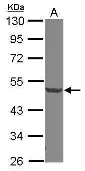 DCP2 Antibody (PA5-31091) in Western Blot
