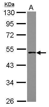 PCYT1B Antibody (PA5-31094) in Western Blot