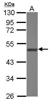 NARS2 Antibody (PA5-31098) in Western Blot