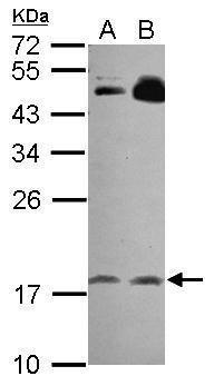 RGS8 Antibody (PA5-31105)