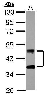 DNAJA4 Antibody (PA5-31107)