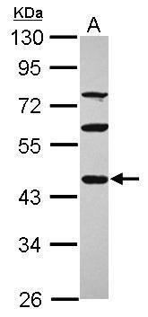 PDE7A Antibody (PA5-31117)