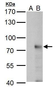 RNF168 Antibody (PA5-31119) in Western Blot