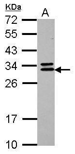 CNOT7 Antibody (PA5-31139) in Western Blot