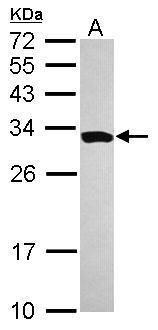 SMNDC1 Antibody (PA5-31148) in Western Blot