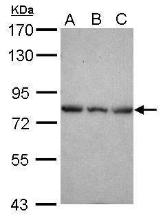 Epsin 2 Antibody (PA5-31158) in Western Blot