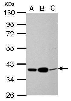 CAR Antibody (PA5-31175) in Western Blot