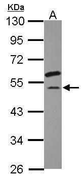 eIF2 gamma Antibody (PA5-31177) in Western Blot