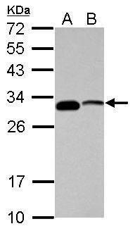 CENPP Antibody (PA5-31186)