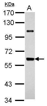 UAP1 Antibody (PA5-31187)