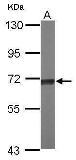 TKTL2 Antibody (PA5-31193)