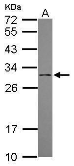 DCI Antibody (PA5-31197) in Western Blot