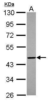 PIGO Antibody (PA5-31201) in Western Blot