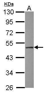 WSB2 Antibody (PA5-31204) in Western Blot