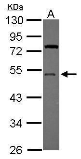 UBA5 Antibody (PA5-31209) in Western Blot