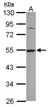 DDX39 Antibody (PA5-31220) in Western Blot