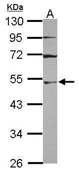 UBA3 Antibody (PA5-31225) in Western Blot