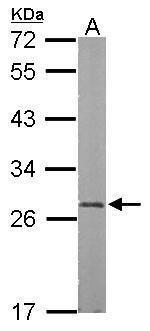 RBPMS Antibody (PA5-31231) in Western Blot