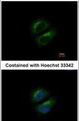 PCBP3 Antibody (PA5-31242) in Immunofluorescence
