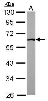 IFIT1 Antibody (PA5-31254) in Western Blot