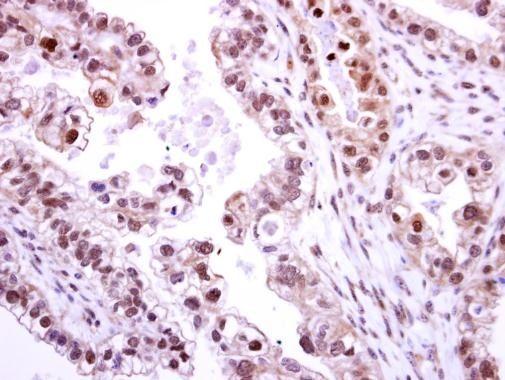 NEK2 Antibody (PA5-31259) in Immunohistochemistry (Paraffin)