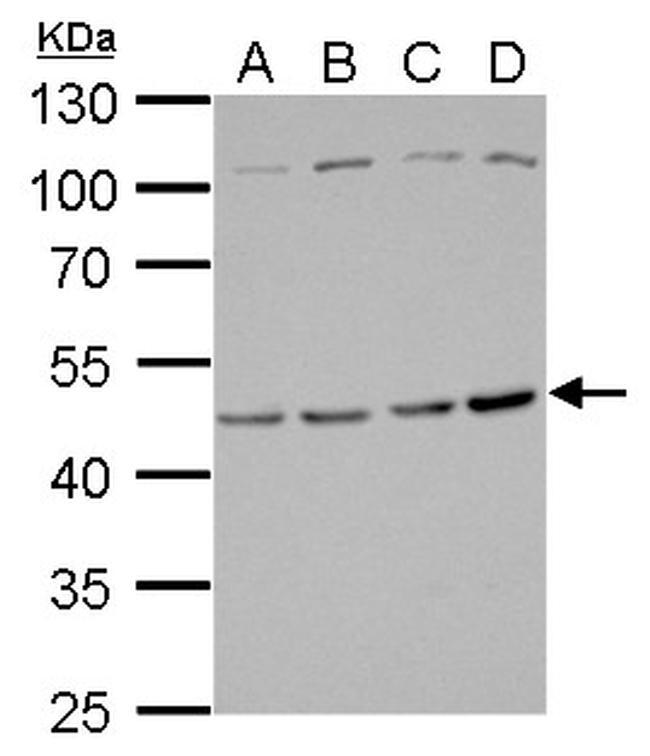 TSG101 Antibody (PA5-31260) in Western Blot